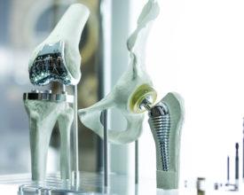 Polissage des implants médicaux